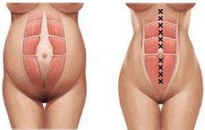 diastasis-rectos-abdominales